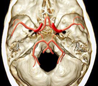 Bob Wills Fiddle Festival Friday Sunday Greenville also 5659033 further Saccular Aneurysm Of Basilar Artery besides Spip furthermore Basilar Artery. on circle of willis in
