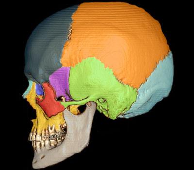 Marqueurs osseux Os_crane_profil